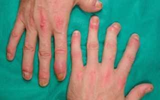 Заболевание опорно-двигательного аппарата — псориатический артрит