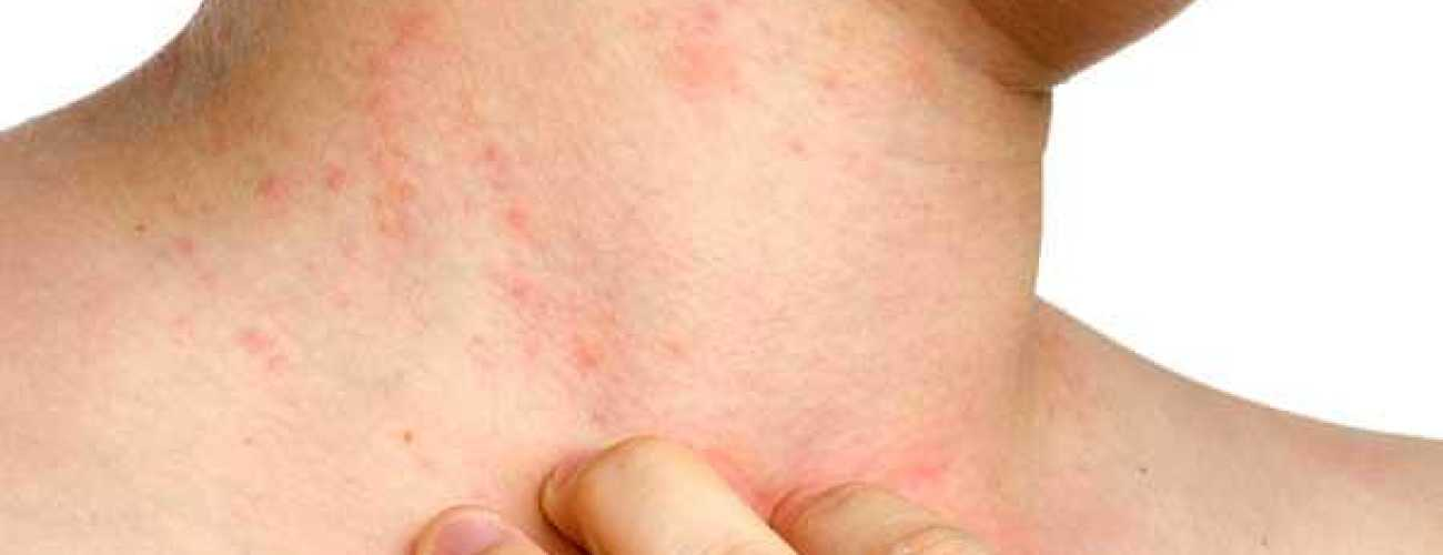 Механизм возникновения и симптомы заболевания псориаз