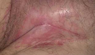 Причины развития и проявления недуга псориаза в паху