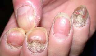 Серьезное дерматологическое заболевание — псориаз ногтей
