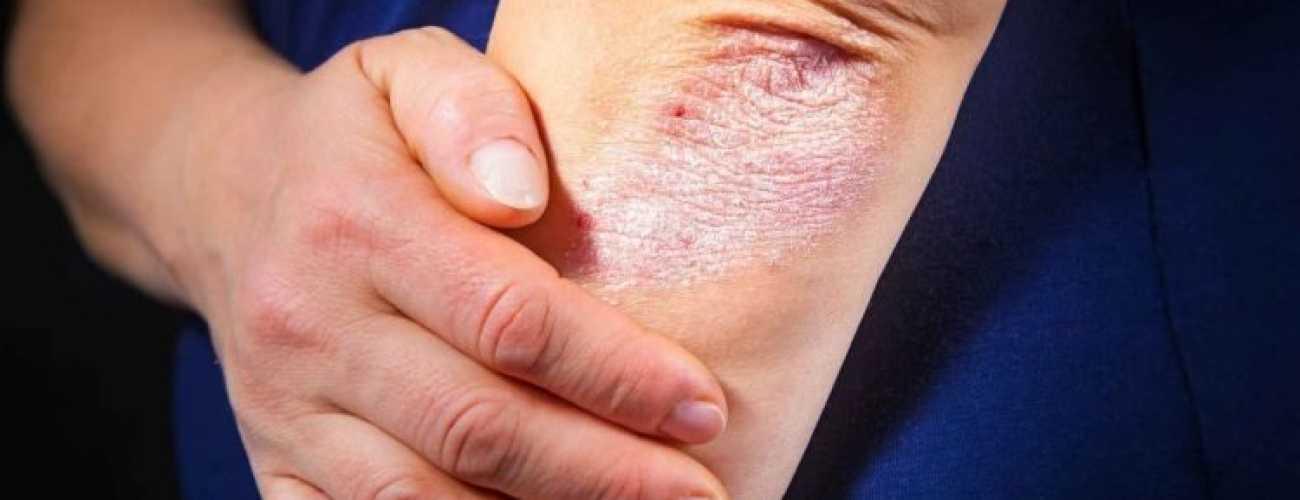 Комплекс мероприятий для лечения заболевания псориаз