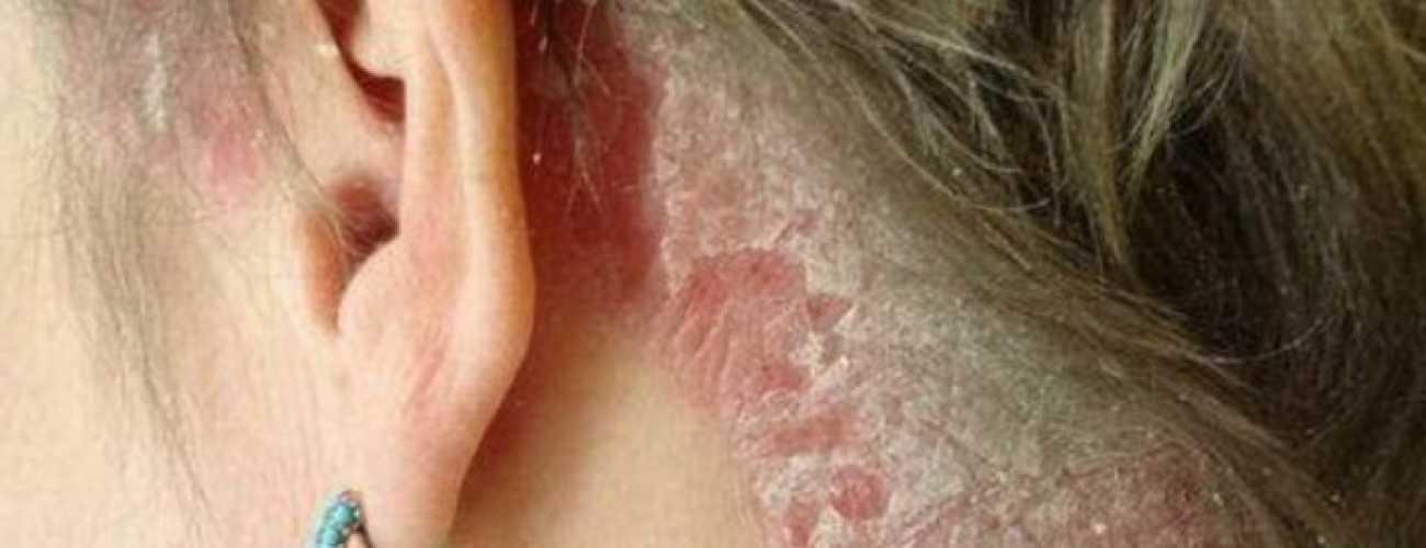 Причина возникновения и способы лечения псориаза на голове
