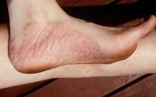 Методики лечения заболевания псориаз на ногах