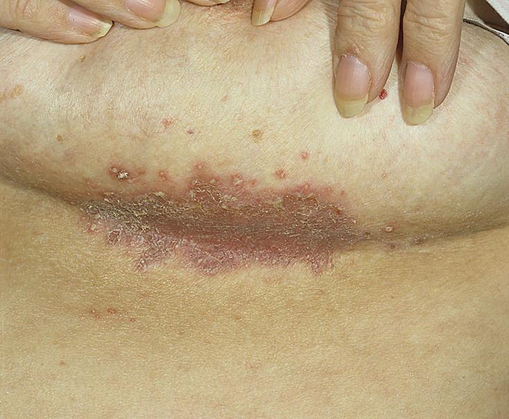 Воспаление в кожной складке