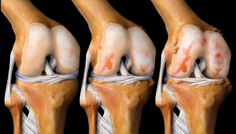 Что используют при артрите или артрозе фото