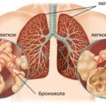 Обструктивная болезнь легких