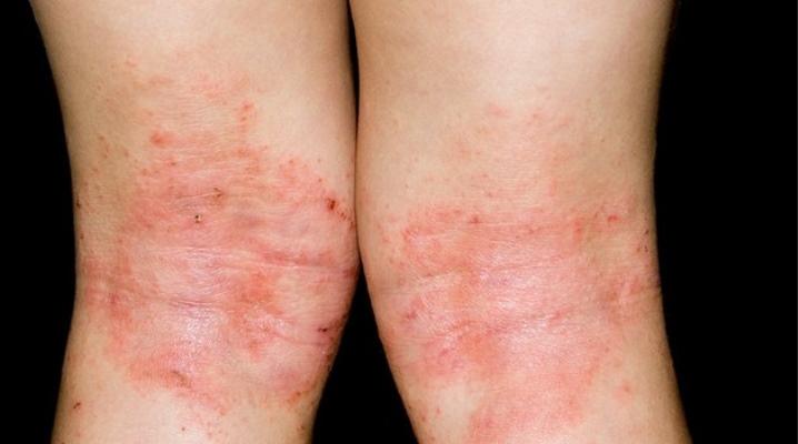 Причины развития аллергического псориаза