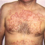 Туберкулезом кожи