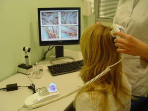 Диагностика псориаза на голове