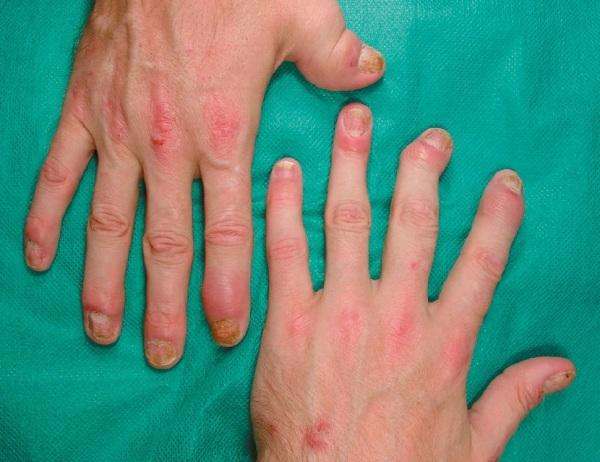 Как вылечить псориатический артрит