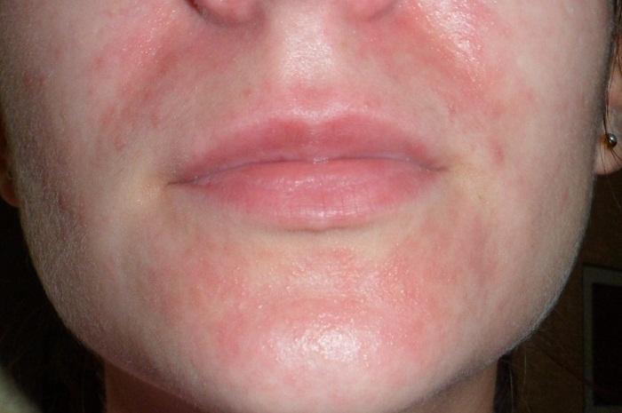 Псориаз на лице: симптомы (ФОТО), чем лечить и чем мазать, уход и диета