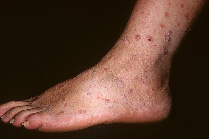 Псориаз на ногах лечение