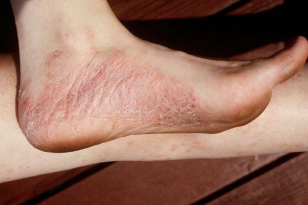 Псориаз на ногах: как лечить псориаз стоп или на голени