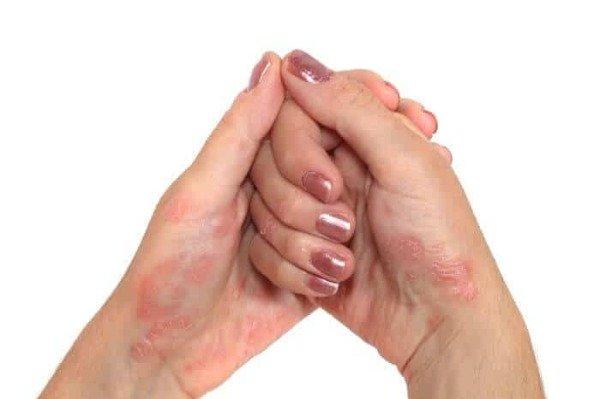 Псориаз на руках - причины возникновения, симптомы и лечение