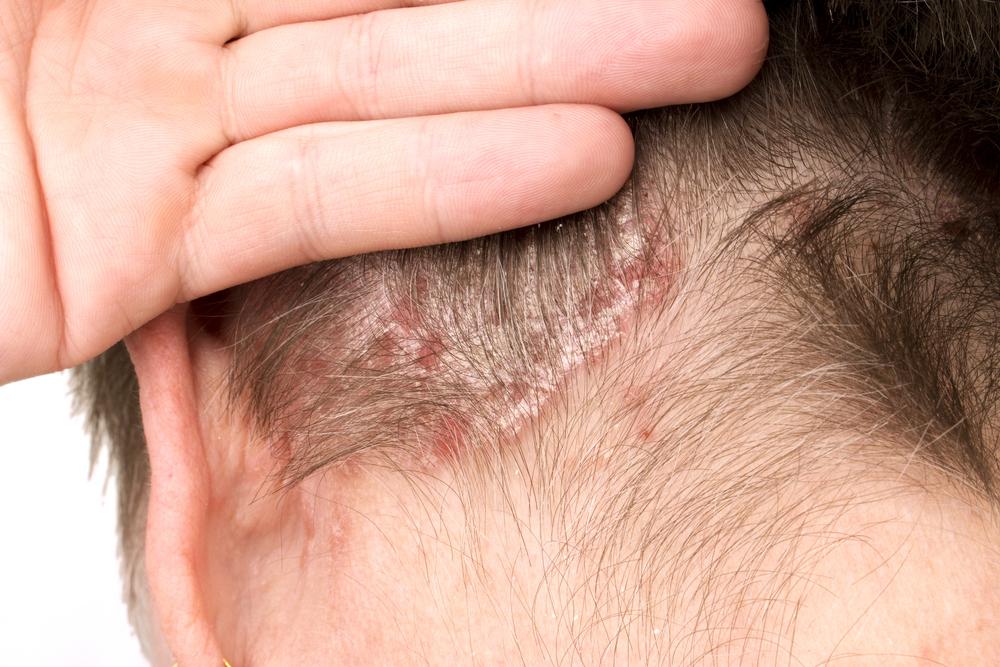 Рекомендации для контроля вспышек псориаза на голове