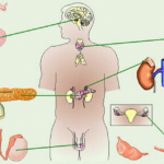 Заболевания эндокринного характера