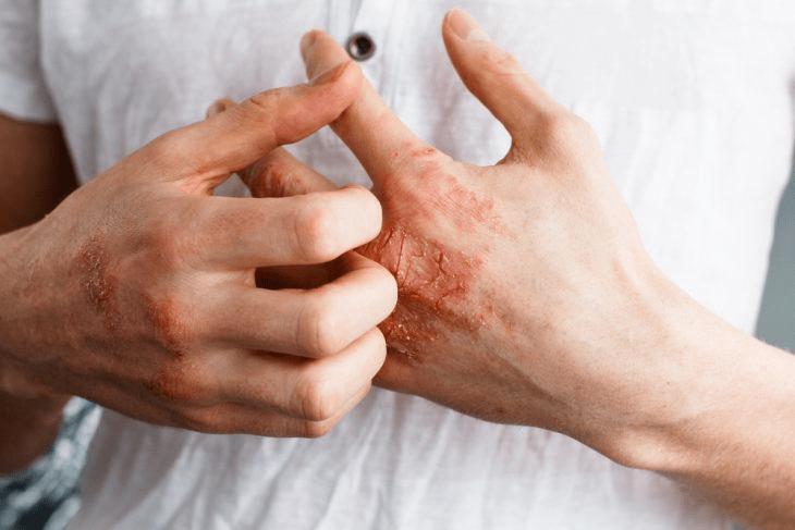 Заживление кожных покровов