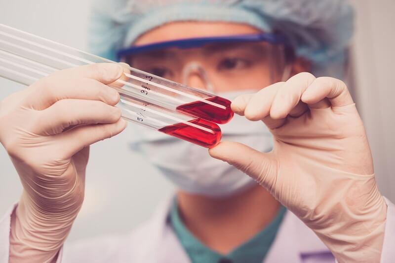 Лабораторная проверка крови на СОЭ