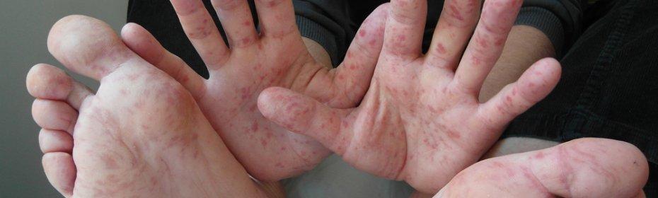 Сыпь геморрагического типа
