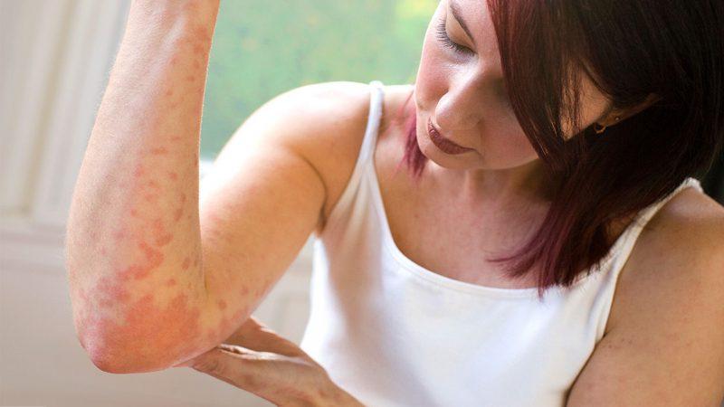 Существует большое количество дерматологических заболеваний. Некоторые из них обладают сходными симптомами, что затрудняет их диагностику. Достаточно часто происходит путаница с диагностированием дерматита и псориаза. Иногда поставить точный диагноз поможет углубленное обследование. При появлении красных пятен, зуда, шелушений следует немедленно обратиться к врачу, самолечение в данном случае противопоказано. Причины развития псориаза и дерматита Визуальные отличия между дерматитом и псориазом найти сложно. Несмотря на сходные проявления причины возникновения значительно отличаются. Псориаз протекает в хроническом режиме с рецидивами и улучшениями состояния, основная особенность патологии заключается в том, что организм реагирует на собственную кожу, как на врага. Дерматит возникает чаще всего в качестве ответной реакции на раздражение. Причины развития болезней идентичны, за исключением гормональных сбоев при псориазе и аллергий при дерматите. Важную роль играет также возраст, псориаз широко распространен с 20 до 50 лет, дерматиту подвержены дети младше семи лет. Стоит отметить, что в медицинской практике зафиксированы случаи псориаза у детей грудничкового возраста, что также может осложнить самостоятельную диагностику болезни. Диагностика При обнаружении на коже высыпаний красного цвета следует немедленно обратиться к дерматологу, часто диагноз выставляется после осмотра. В процессе диагностики псориаза врач обязательно опрашивает пациента о больных родственниках с похожей симптоматикой. Их наличие свидетельствует о том, что болезнь передалась пациенту по наследству. В некоторых случаях требуется более тщательное обследование, которое включает следующие методы: Анализ крови — при псориазе наблюдается увеличение концентрации белков, лейкоцитов, ускоряется оседание эритроцитов; Биопсия кожных покровов — в рамках процедуры производится удаление участка кожи, который рассматривается под микроскопом после обработки специальными веществами; Общий анализ мочи — при повыш