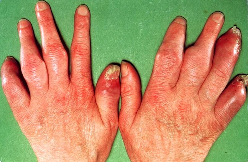 Физиотерапия при псориатическом артрите