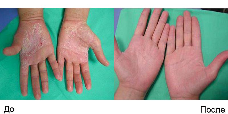 Псориаз – дерматологическое заболевание