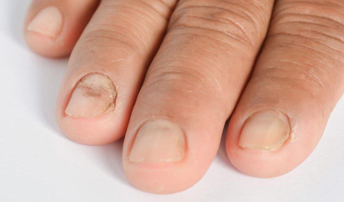 Распознать псориаз ногтей